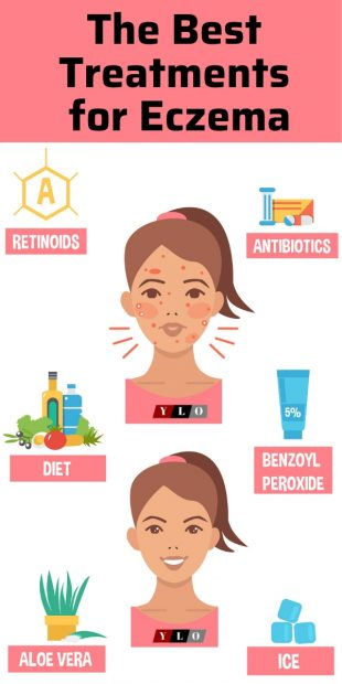 The Top 6 treatments for eczema outbreaks infographic