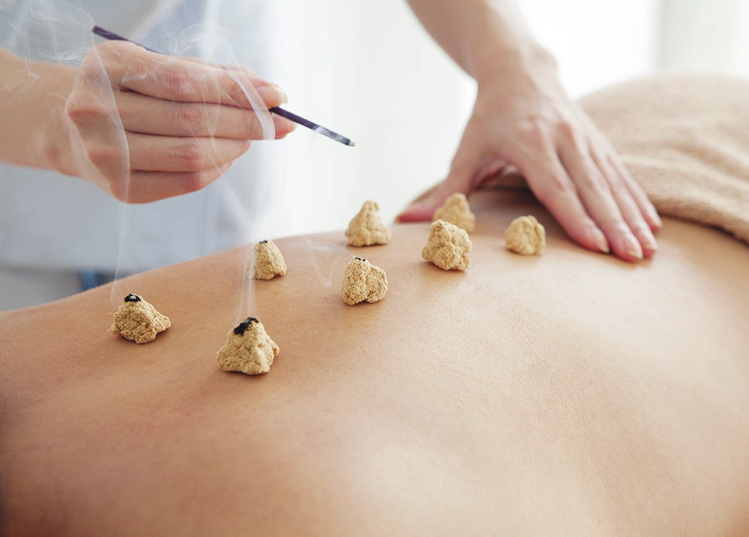 Chinese Acupuncture & Massage Used In TCM - Your Lifestyle ...